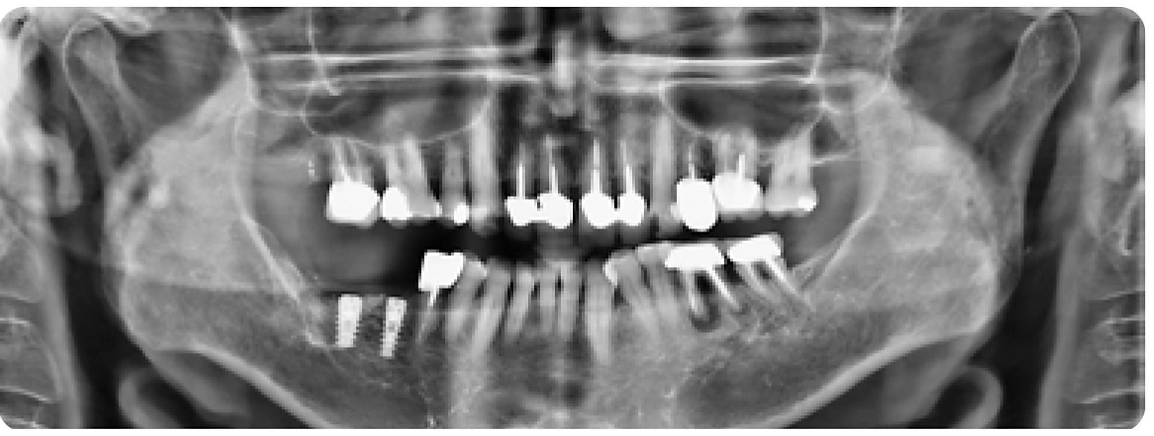Panoramic-X-ray Coross Coral Bone Graft